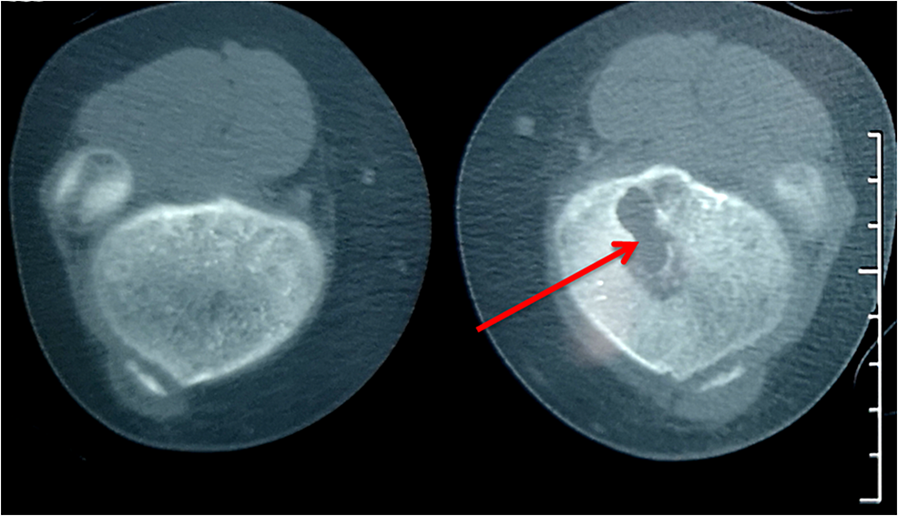 Knee-CT:-lytic-lesion-in-the-proximal-left-tibia-(red-arrow)