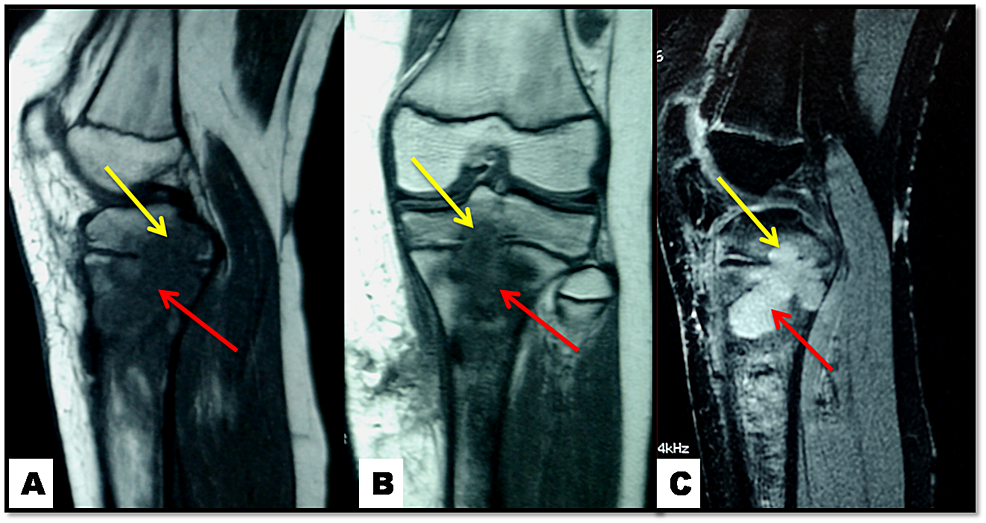 Knee-MRI:-lytic-lesion-at-metaphyseal-(red-arrows)-and-epiphyseal-(yellow-arrows)-regions