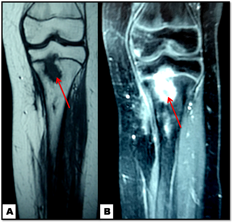 Knee-MRI:-osteomyelitis-of-the-proximal-tibia-(red-arrows)-at-six-months-follow-up