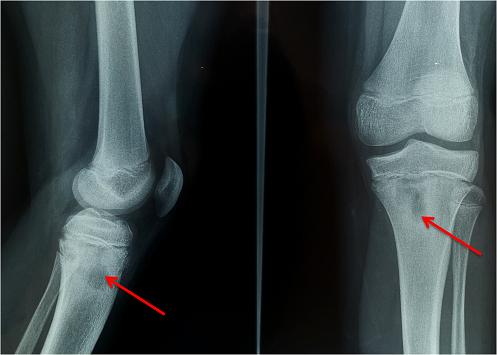 Knee-radiographs-at-two-years-follow-up:-osteomyelitis-of-the-proximal-tibia-(red-arrows)