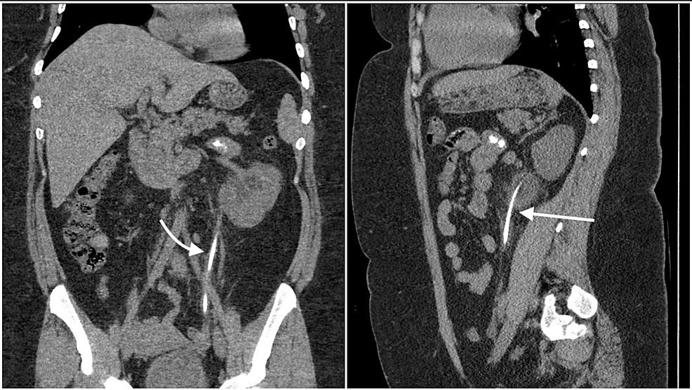 Coronal-(left)-and-sagittal-(right)-view-of-the-patient's-abdominal-CT-showing-an-encrusted-ureteral-stent
