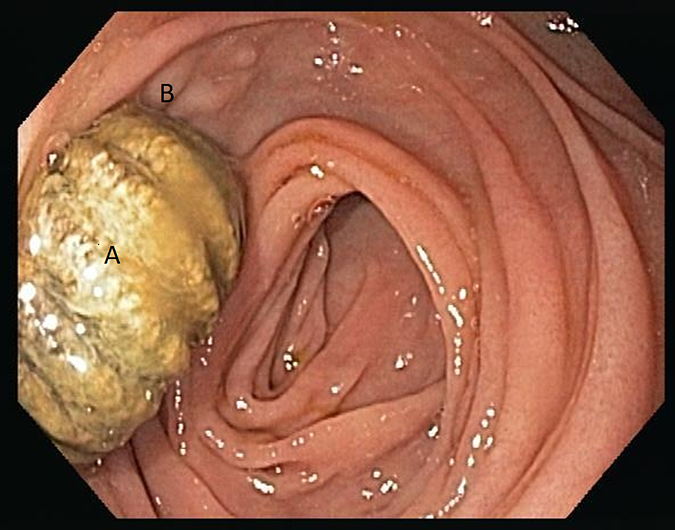 Upper-endoscopy-images-showing-aortic-graft-showing-aortic-graft-material-(A)-eroding-into-the-third-part-of-the-duodenum-(B).