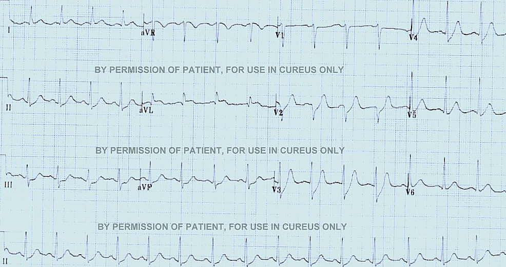 The-second-ECG-of-the-patient-with-ST-depressions-in-Inferior-leads.