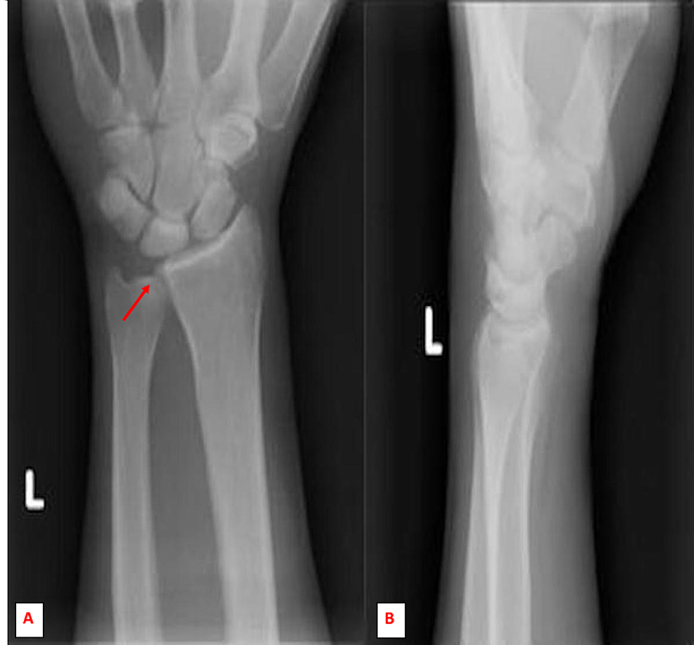 Initial-anterior-posterior-(A)-and-lateral-(B)-radiographic-imaging-of-the-left-wrist-showed-normal-alignment,-articular-surfaces-and-preserved-spaces.-No-obvious-lytic-or-blastic-lesions.-A-negative-ulnar-variance-noted.