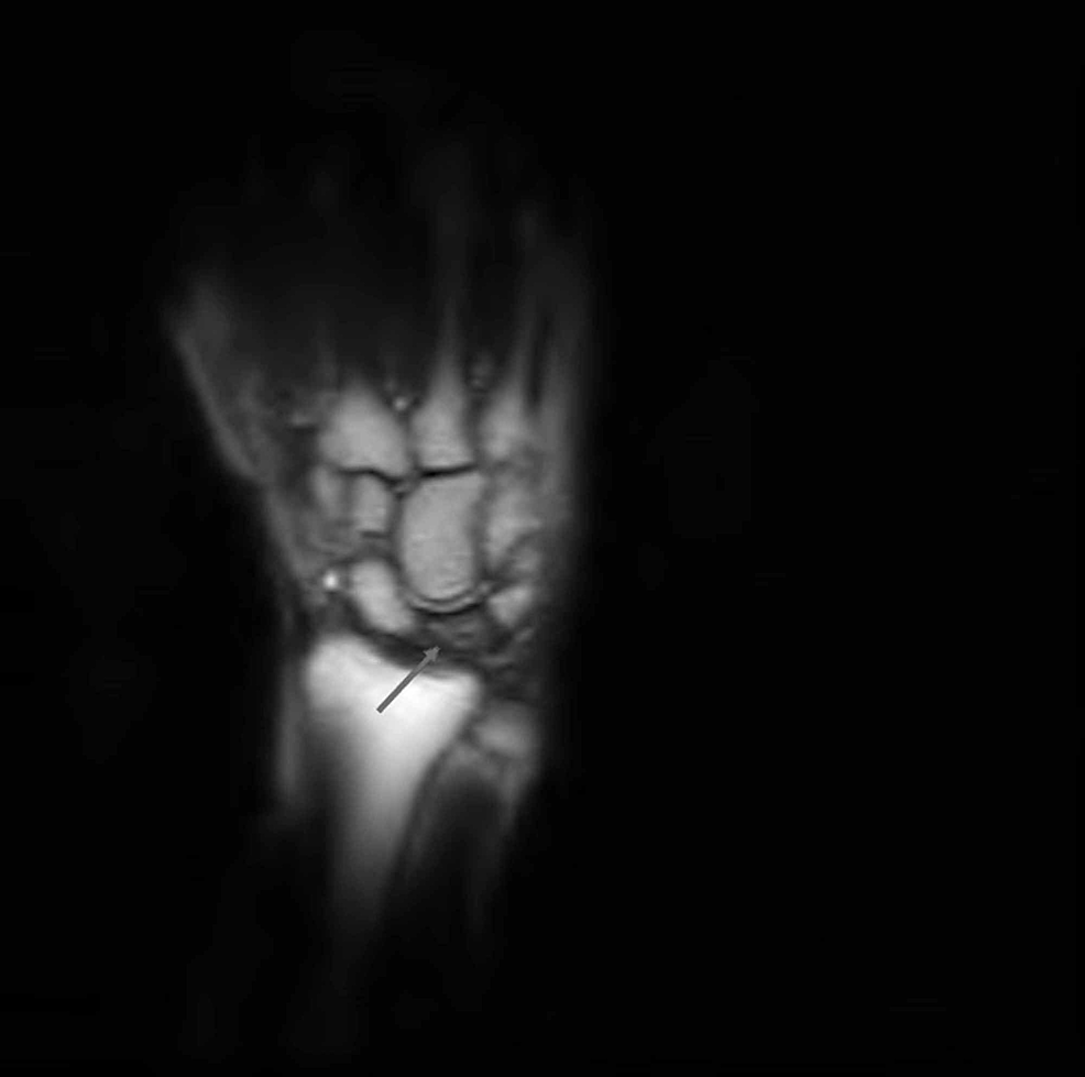 Coronal-T1-weighted-MR-image-of-the-left-wrist-revealed-mild-flattening-of-the-lunate,-a-linear-fissure-fracture-superiorly,-and-a-decreased-signal-intensity-of-the-lunate-suggestive-of-Kienböck's-disease,-stage-IIIA.