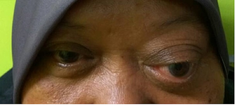 Marked-proptosis-over-the-left-eye.