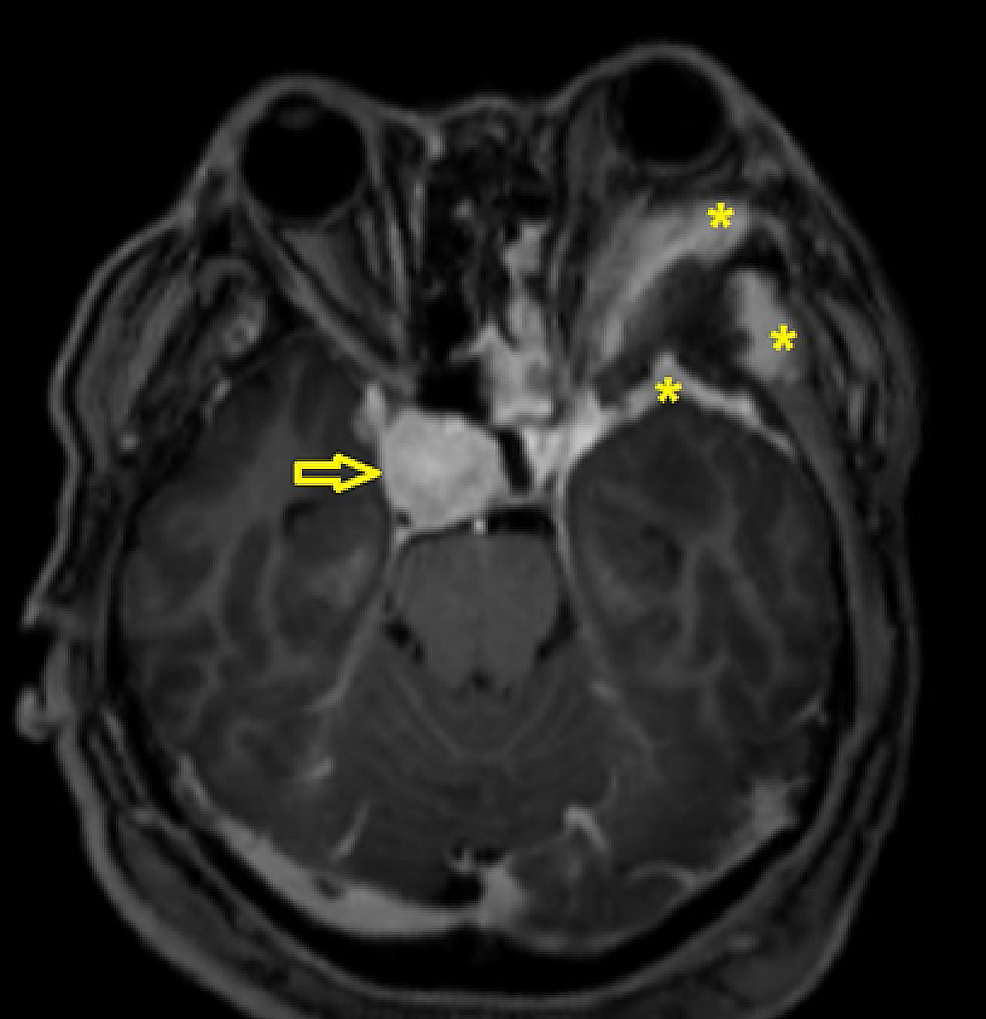 MRI-with-gadolinium-showing-enhancing-soft-tissue-surrounding-the-lesion-(*).-Left-orbital-content-is-being-pushed-anteriorly.-There-is-also-presence-of-another-lesion-at-parasellar-region-which-showed-vivid-enhancement-(open-arrow).-Both-lesions-are-not-in-continuity-with-one-another.