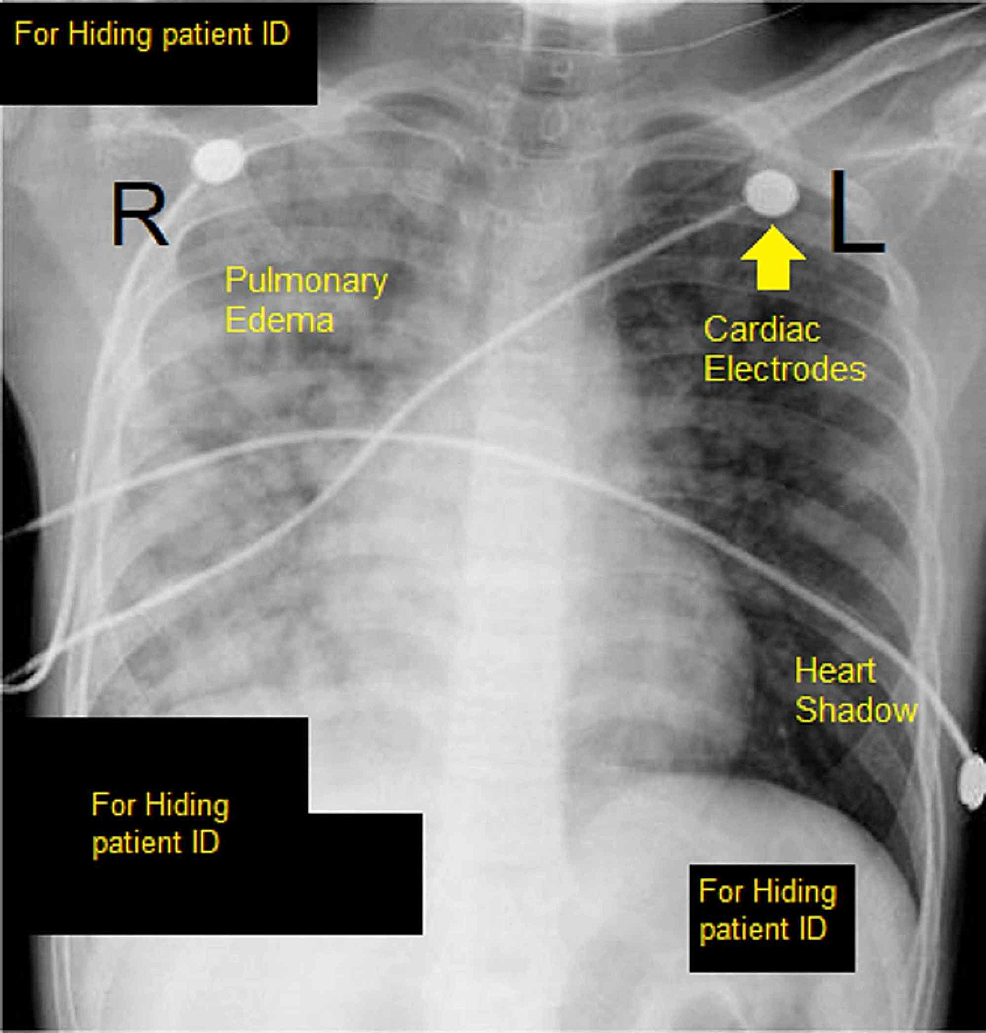 CXR-showing-pulmonary-edema.