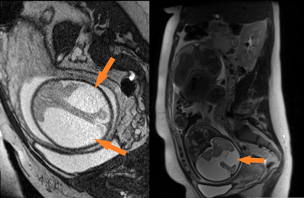 Fetal-MRI-at-28-weeks