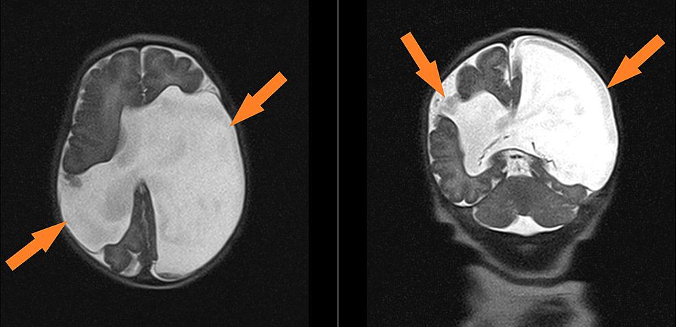 Neonatal-MRI-at-day-of-life-1
