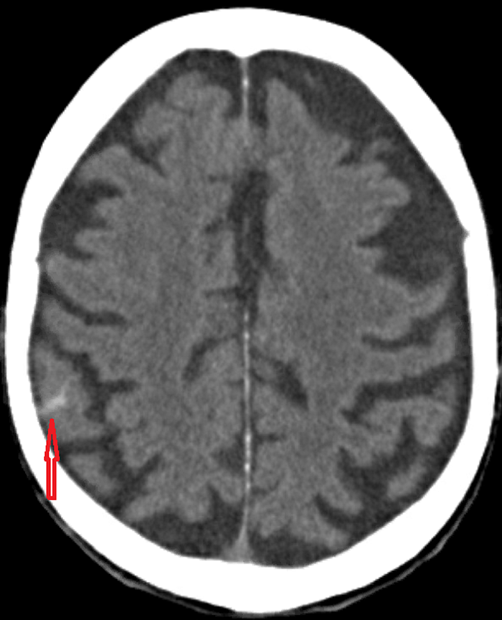 Noncontrast-computed-tomography-scan-of-the-head,-axial-view-showing-small-focus-of-subarachnoid-hemorrhage-(arrow).-No-evidence-of-midline-shift.