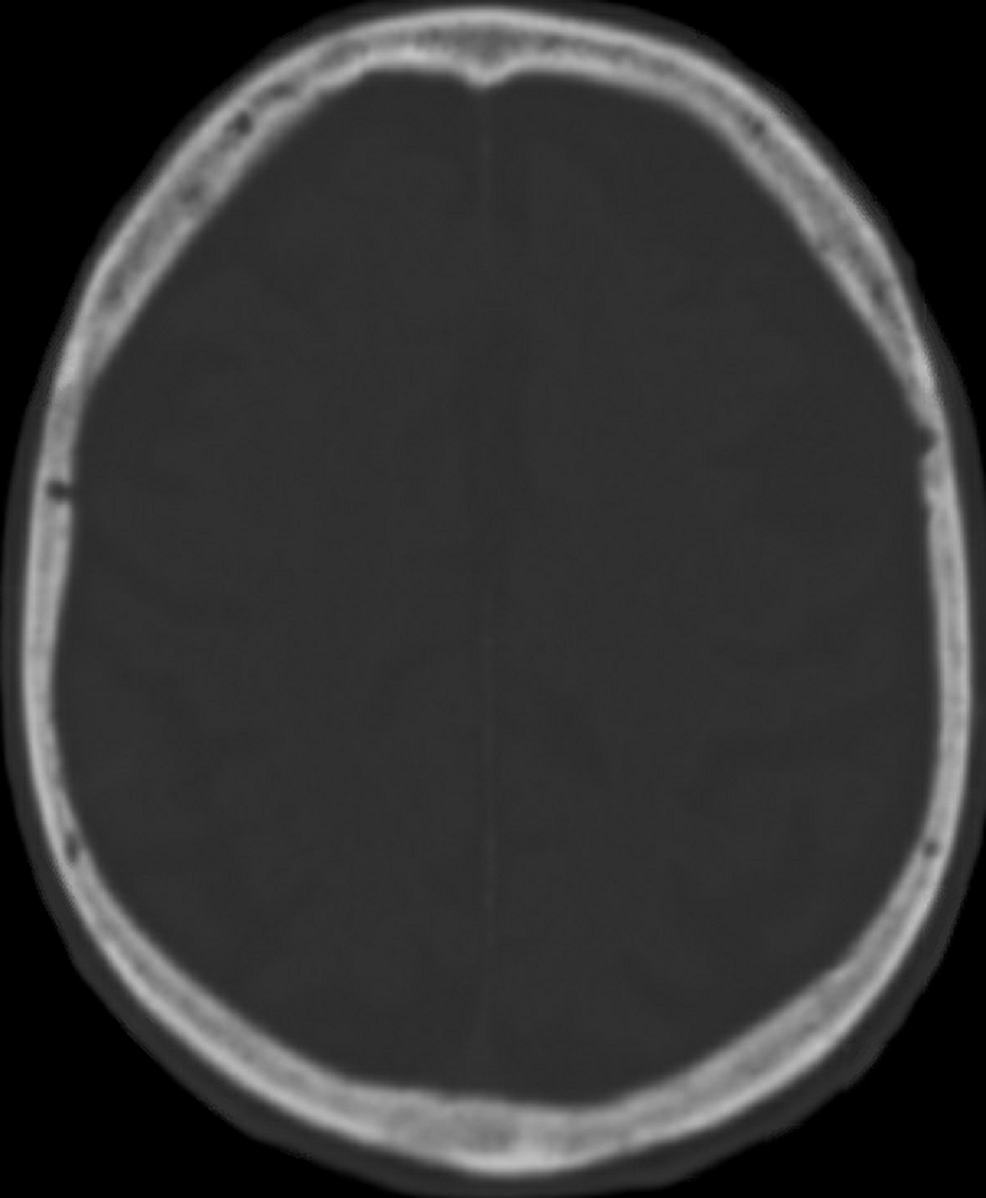 Axial-view-of-a-computed-tomography-scan-of-the-calvaria,-bone-window,-no-evidence-of-depressed-skull-fracture.