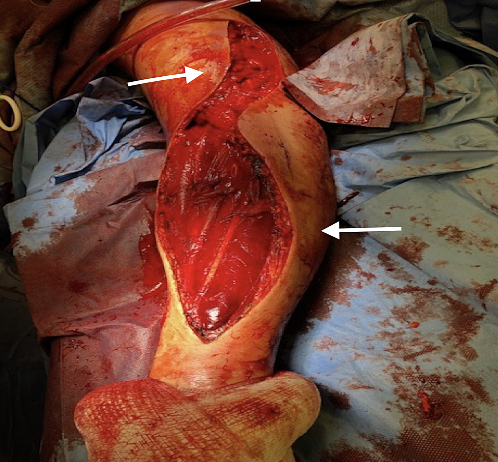 A-lazy-S-shaped-incision-was-carried-along-the-ventral-aspect-of-the-forearm-without-extension-to-hand,-hence-the-flexor-retinaculum-ligament-was-not-divided.