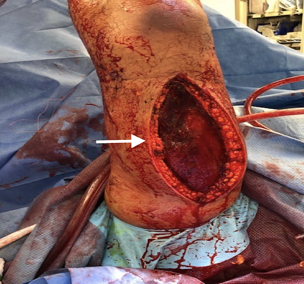 A-15-cm-posterior-vertical-incision-was-carried-along-the-posterior-midline,-allowing-for-evacuating-blood-collection-in-the-posterior-compartment.-