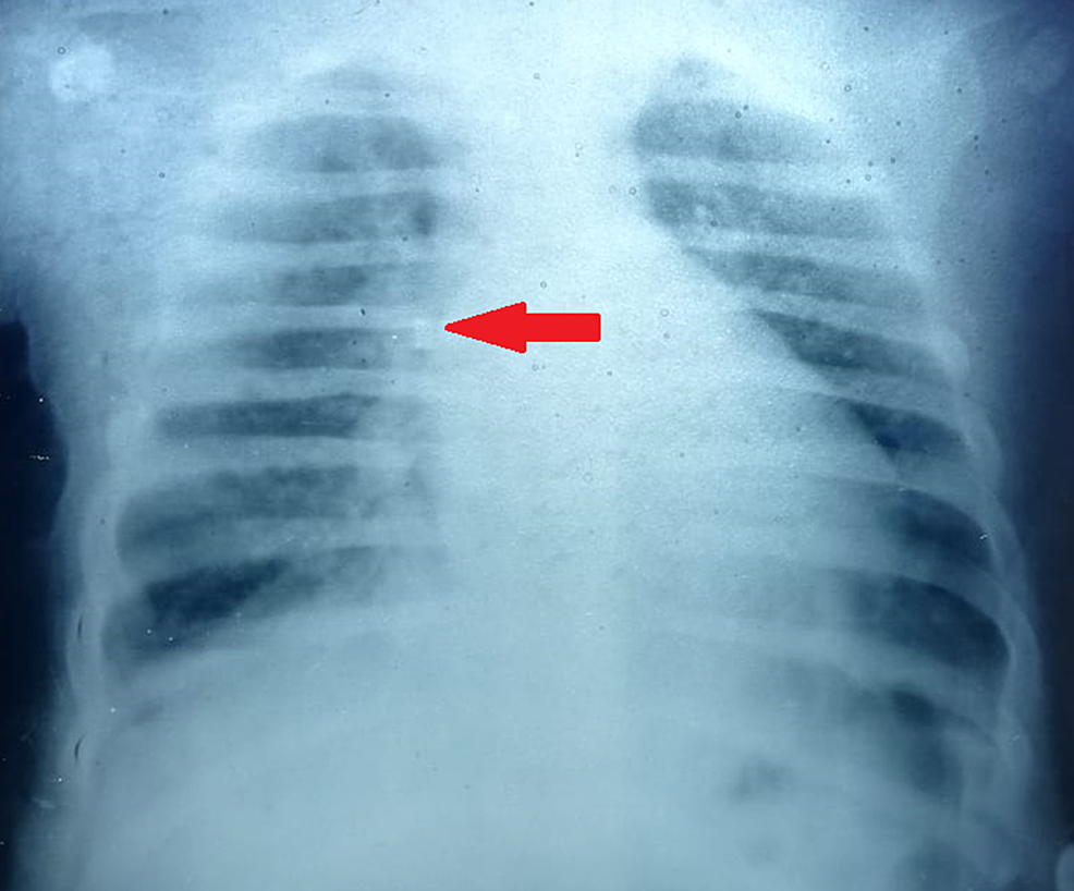 X-ray-chest-of-our-patient-showing-bronchopneumonia