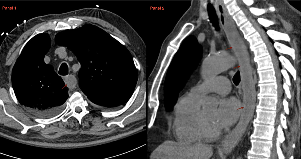Panel-1:-axial-CT-of-the-chest-showing-distal-esophageal-thickening.-Panel-2:-sagittal-CT-of-the-chest-demonstrating-distal-esophageal-thickening