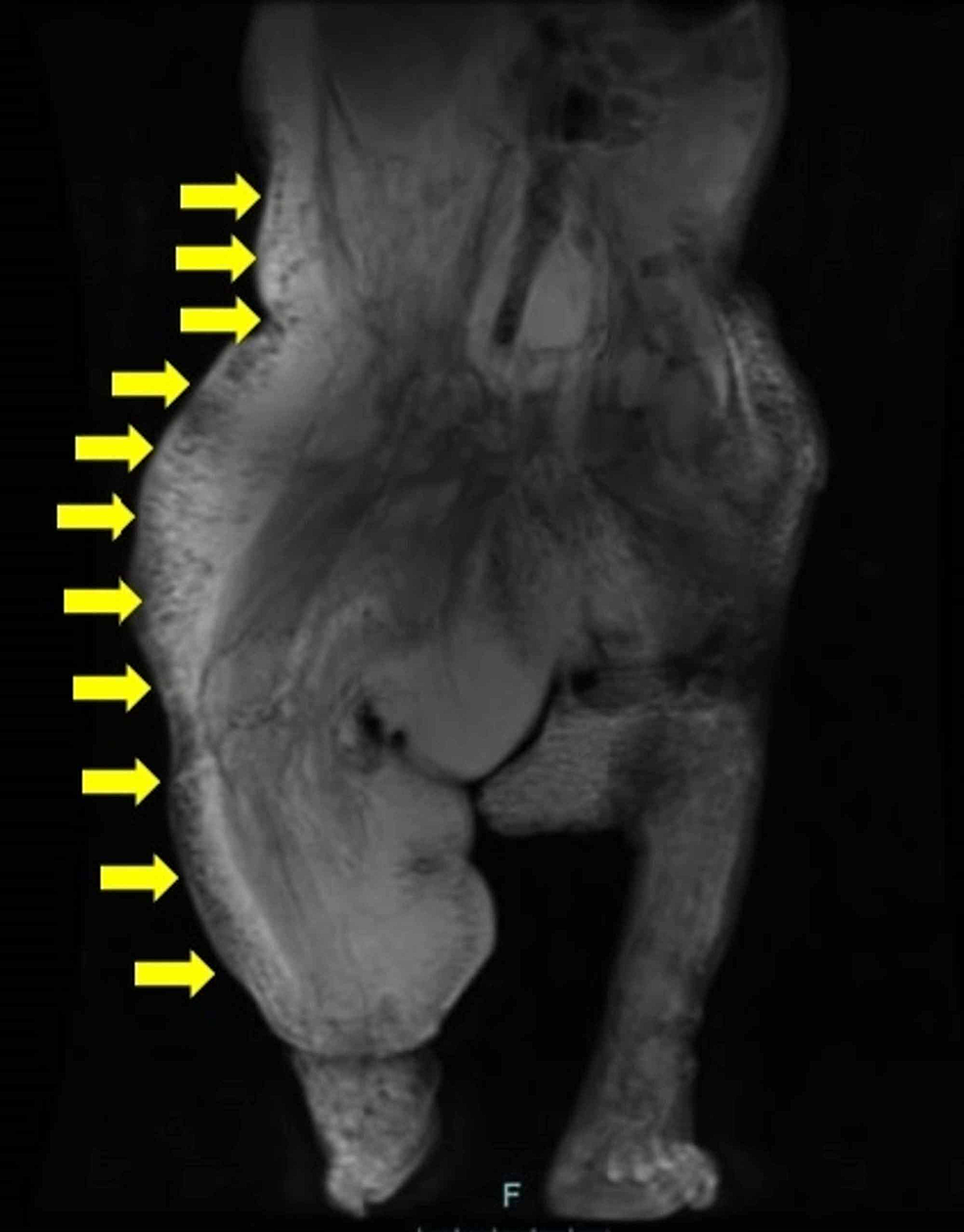 Pre-gadolinium-T2-weighted-coronal-magnetic-resonance-imaging-(MRI)-scan-showed-white-lymphatic-malformations-in-most-of-the-right-side-of-the-body-(yellow-arrows)