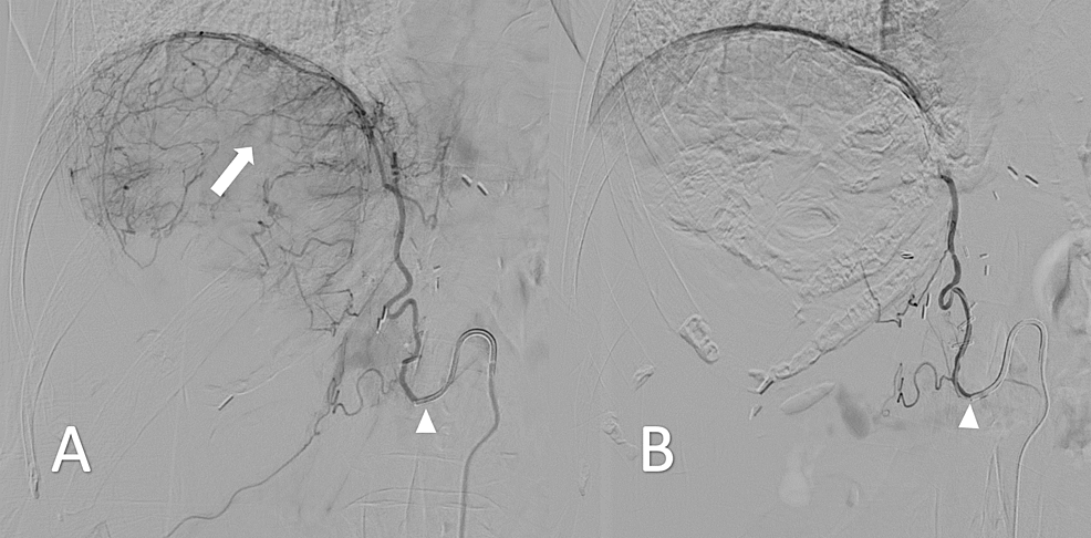 Intraprocedural-digital-subtraction-angiogram