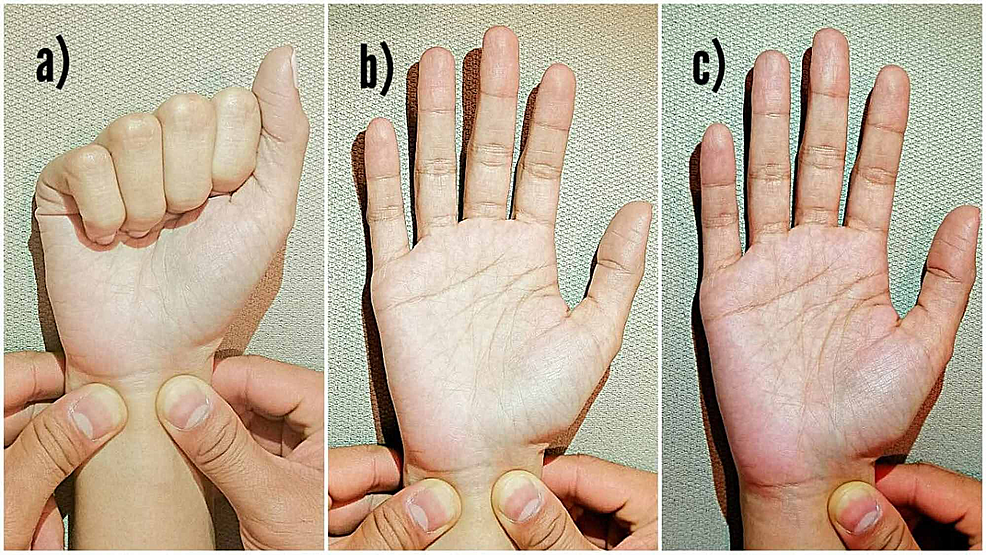 Allen's-test-to-determine-the-patency-of-the-palmar-arch.-