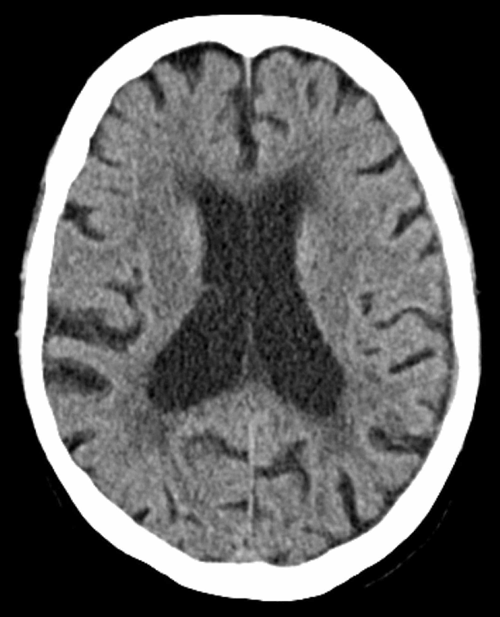 Ten-week-outpatient-follow-up-CT-examination-demonstrating-persistent-thin-subdural-collection-with-minimal-mass-effect-and-no-significant-midline-shift.