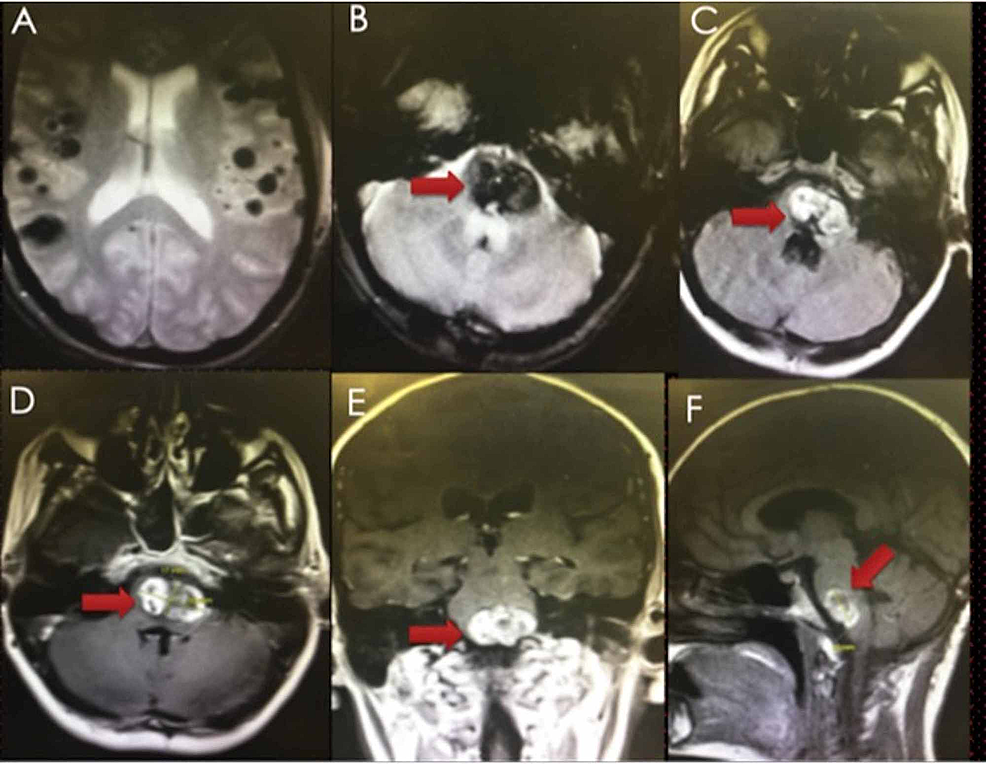 Preoperative-MRI-(GRE-(A&B),-T1-FLAIR-(C),-and-T1W-gadolinium-contrast-images-(D-F))-showing-multiple-intracranial-cavernomas-(supratentorial-A,-pontomedullary-B-F,-red-arrows).