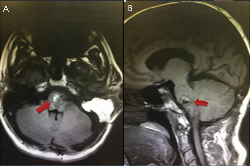Postoperative-MRI-(T1W-without-contrast)-showing-satisfactory-resection-of-the-pontomedullary-lesion-with-a-fat-graft-in-the-resection-cavity-(red-arrows).