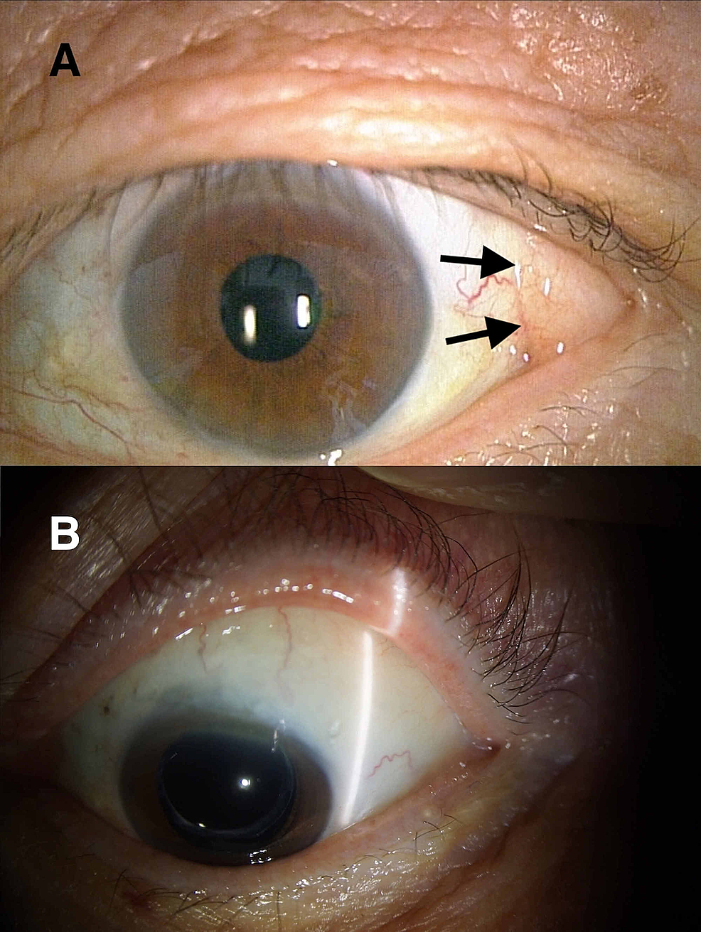 Prolapsed-subconjunctival-fat-in-the-superotemporal-quadrant-of-the-left-eye-of-a-man.