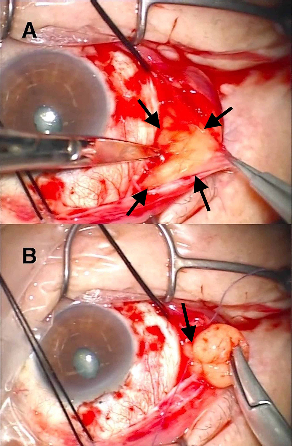 Perspective-of-the-surgeon.-Right-eye-of-a-70-year-old-man.
