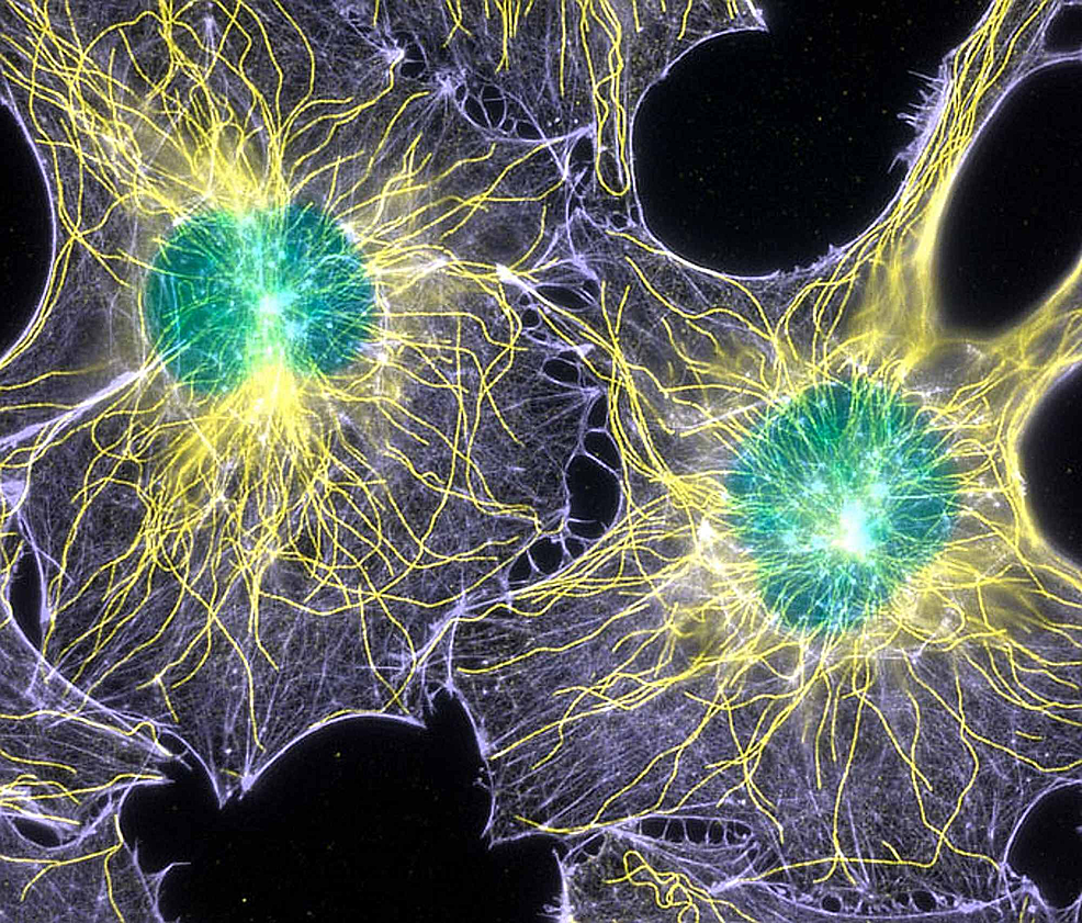 The-image-shows-fibroblast-cells-with-actin-filaments-and-microtubules.