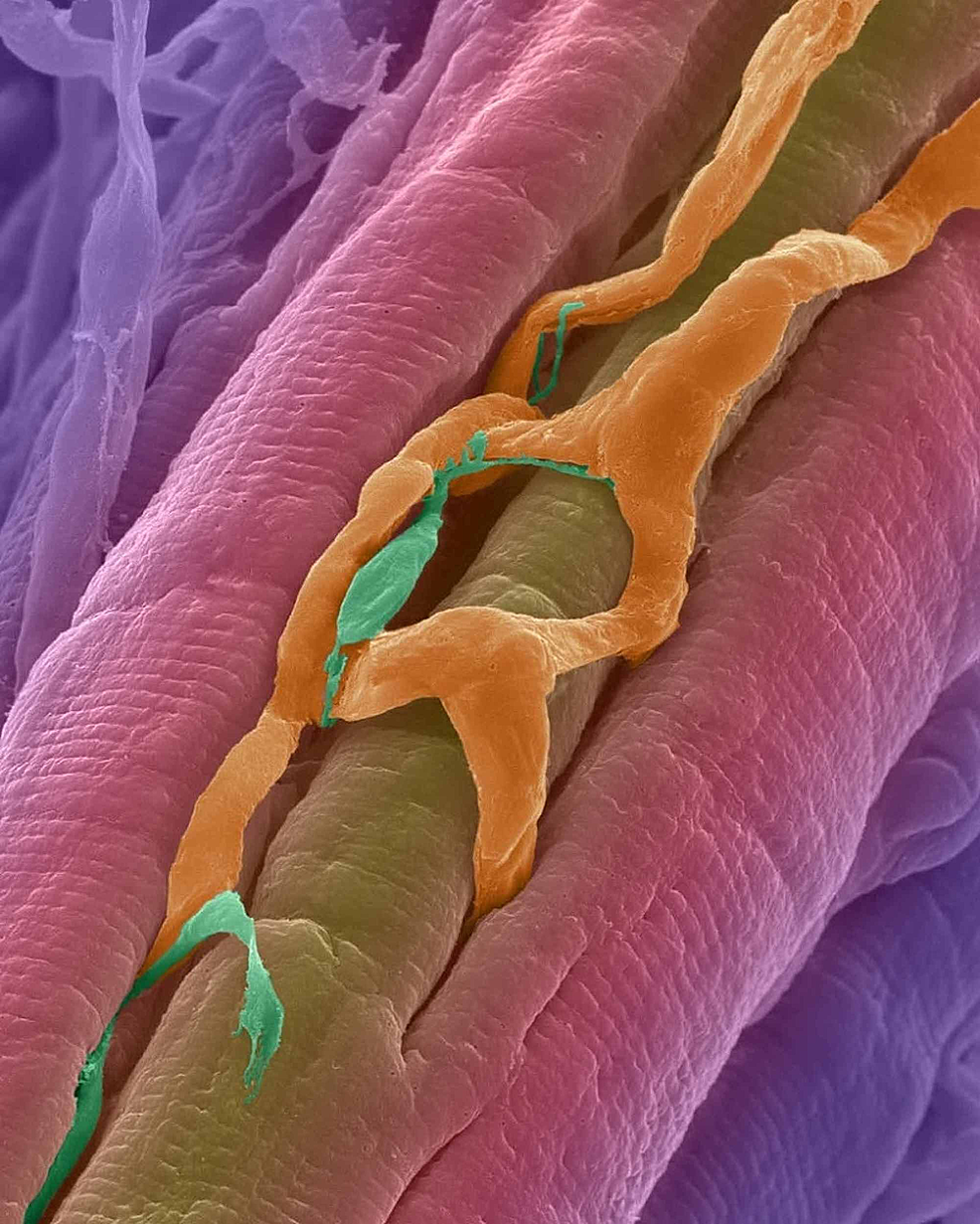 The-orange-reticulated-in-this-scanning-electron-micrograph-is-made-up-of-blood-vessels-intersecting-the-cardiac-muscle-fibers-(in-pink).