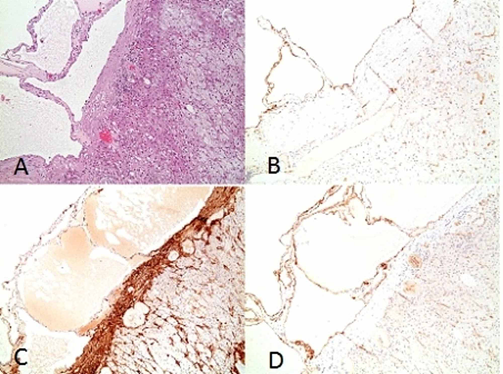 A:-Hematoxylin-&-Eosin-stain-showing-multilocular-cyst-lined-by-single-layer-of-flattened-endothelial-cells-and-thin-fibrous-septa-that-focally-contained-some-lymphocytes;-no-atypia-is-noted;-B-&-D:-Immunostaining-on-cross-section-showing-cells-lining-the-cystic-spaces-positive-for-CD31;-C:-Immunohistochemistry-showing-positive-SMA-staining