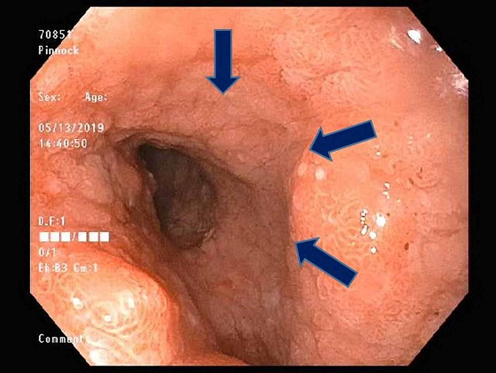 Endoscopic-view-of-narrowing-in-the-distal-part-of-the-duodenum