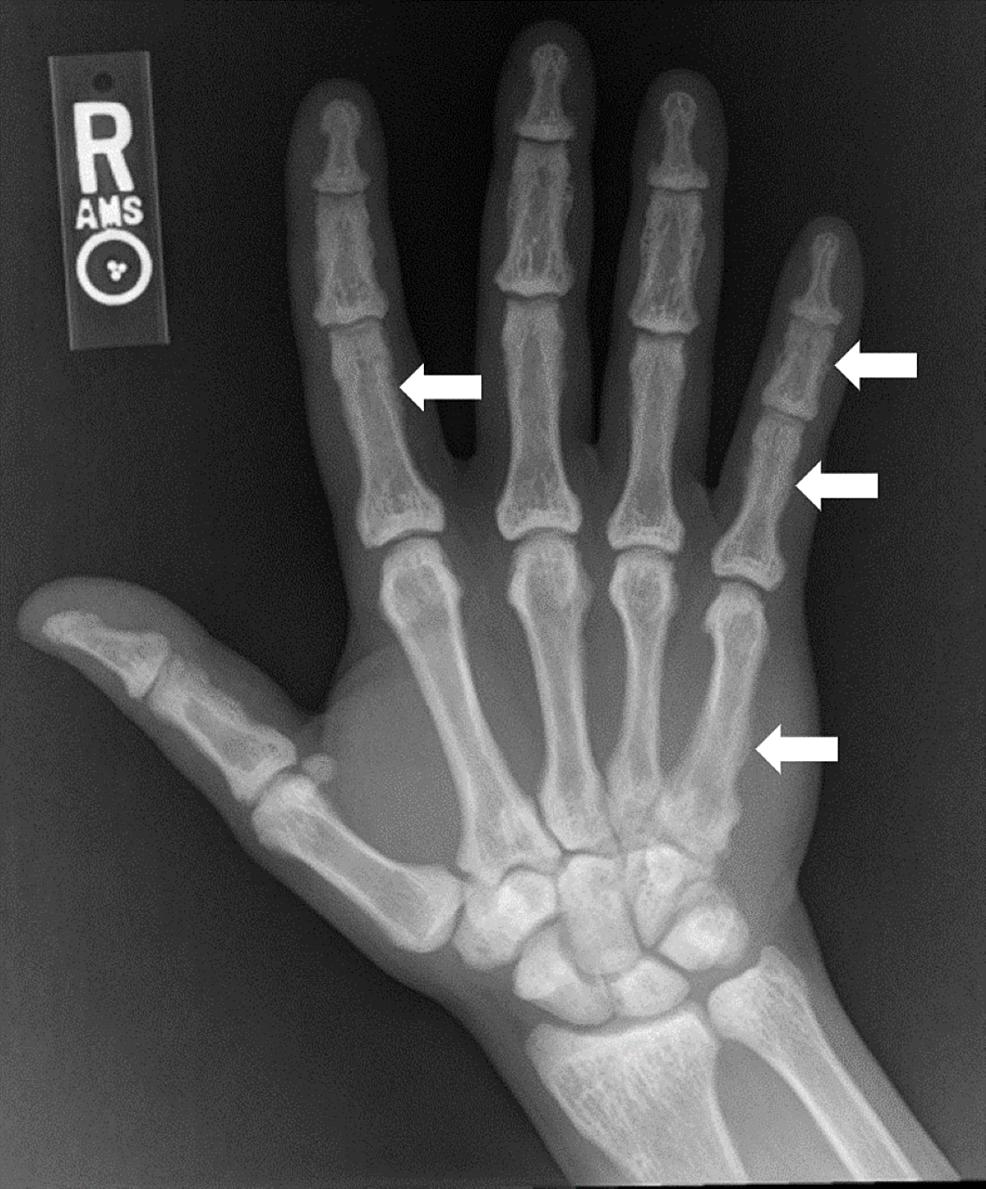Right-hand/wrist-radiograph