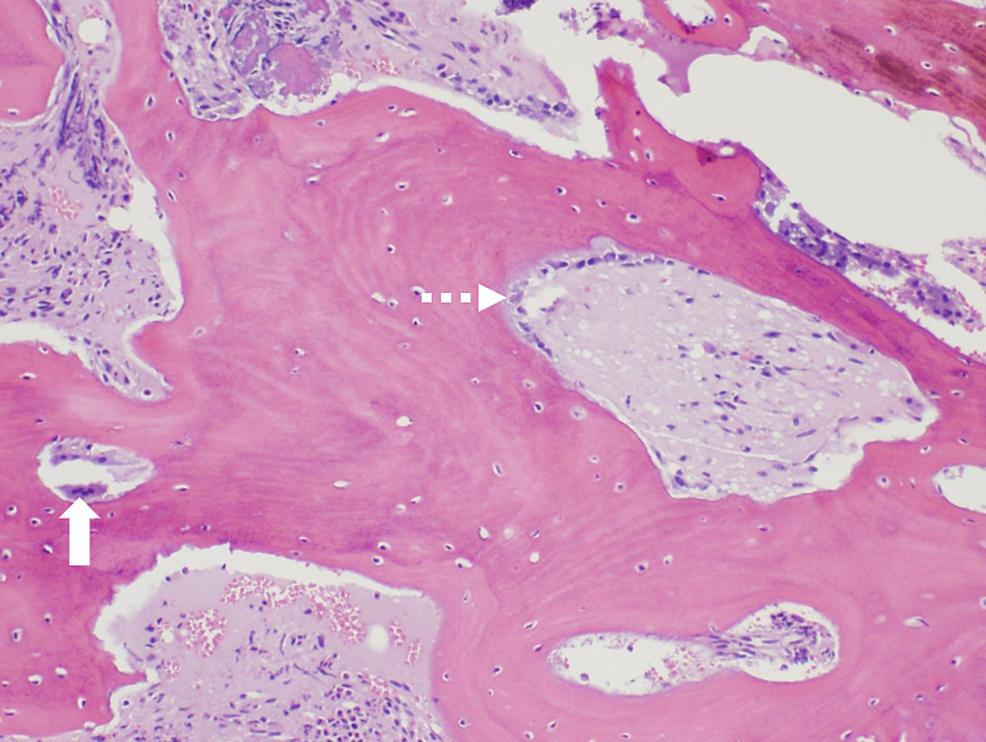 Bone-marrow-biopsy