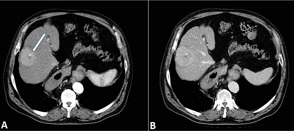 Liver-mass.-Axial-CT-scan-in-the-arterial-phase-(A)-demonstrates-a-mildly-hyperdense-mass-in-the-sixth-liver-segment-with-a-central-calcification-(arrow).-The-mass-shows-early-arterial-enhancement,-but-a-typically-fast-wash-out--characteristic-for-HCC-is-not-seen-(B).