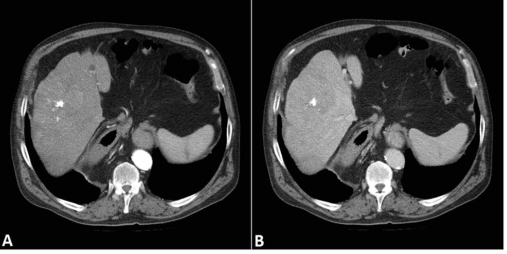 Liver-mass.-Follow-up-CT-examination-shows-enlargement-of-the-main-lesion-(measuring-8-cm-x-10-cm).-The-lesion-has-a-calcified-center-with-hyperdense-septa-spreading-outwards.-It-demonstrates-early-enhancement-in-the-arterial-phase-(A)-with-signs-of-quick-wash-out-in-the-portal-phase-(B).