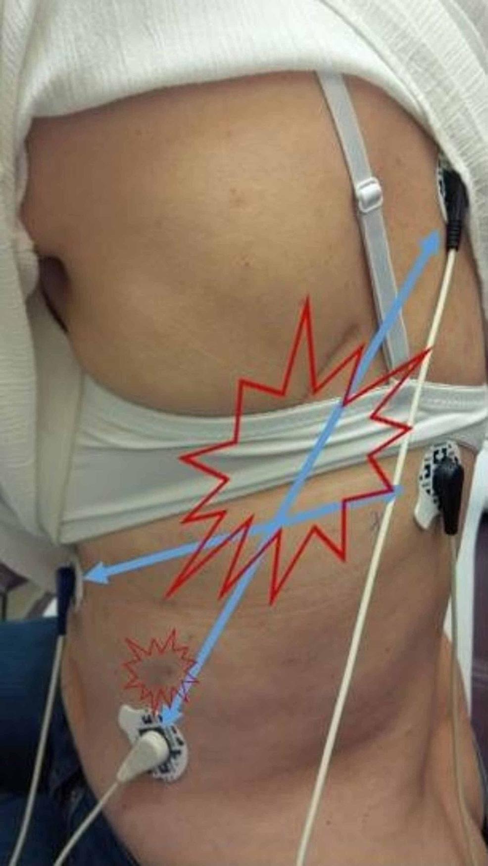 Thoracotomy-scar-pain