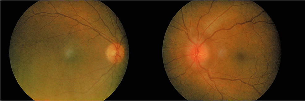 Fundus-photo-showing-left-optic-disc-swelling-with-mild-tortuous-and-dilated-vessels.