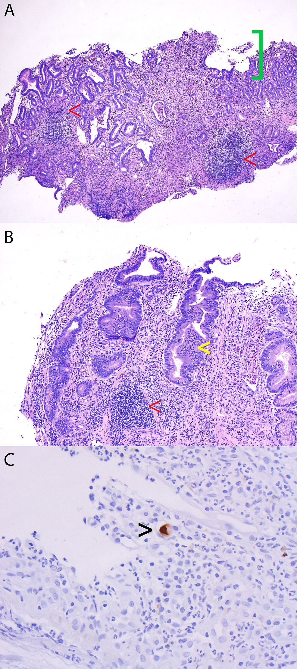 Gastric-antrum-and-body-biopsies
