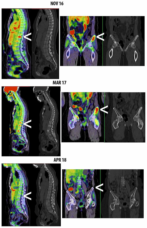 Serial-PET-CT-imaging