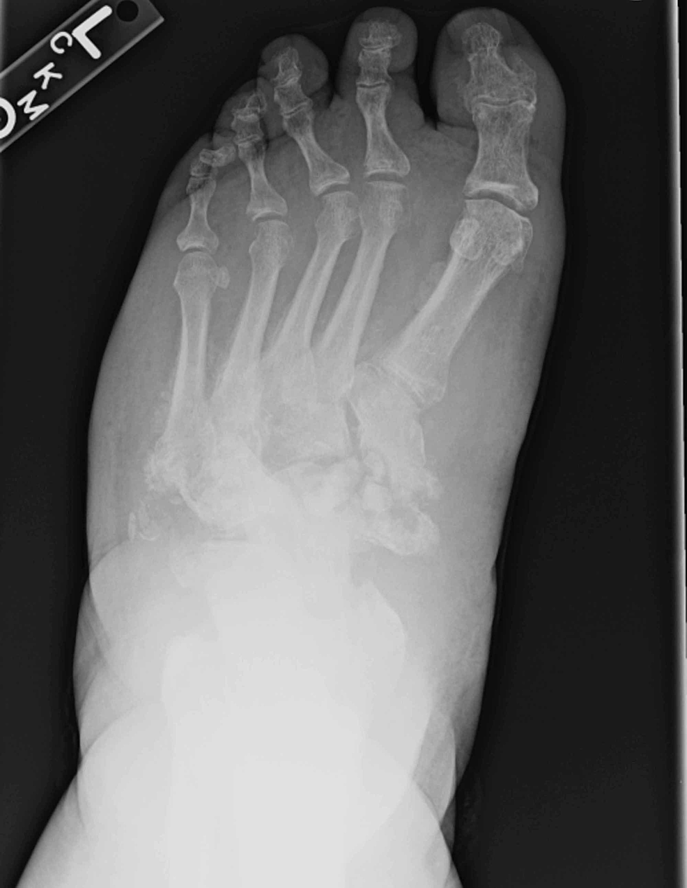 Anteriorposterior-foot-view-demonstrated-diffuse-tarsal-bone-fragmentation-and-obliteration-of-native-joint-spaces-consistent-with-active-Charcot-neuroarthropathy.