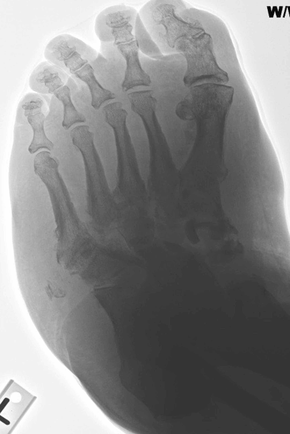 Medial-oblique-view-demonstrated-diffuse-tarsal-bone-fragmentation-and-obliteration-of-native-joint-spaces-consistent-with-active-Charcot-neuroarthropathy.