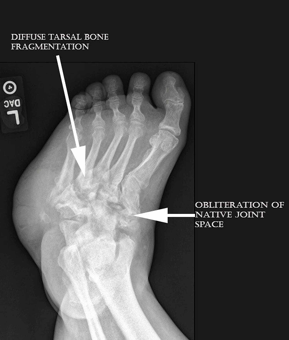 Medial-oblique-foot-view-demonstrated-consolidation-of-bone-fragments-and-presence-of-joint-arthrosis-indicating-an-inactive-process.-Also-of-note-is-the-radiodense-plantar-lateral-mass-at-the-level-of-the-midfoot.-