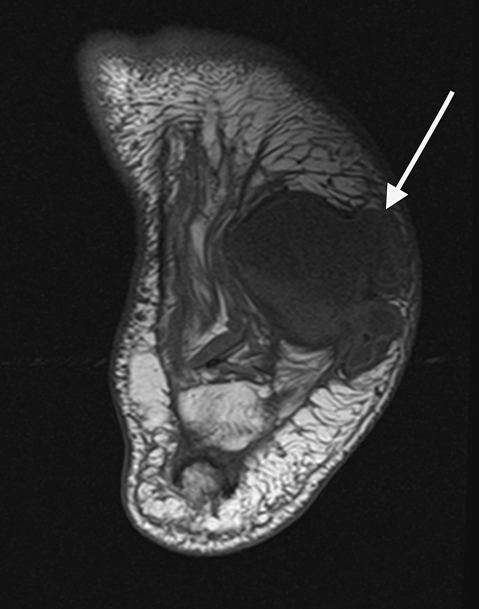 Axial-MRI-revealed-well-organized-fluid-filled-lesion-within-the-plantar-lateral-tissue-that-is-communicating-with-the-disrupted-joints-of-the-midfoot.