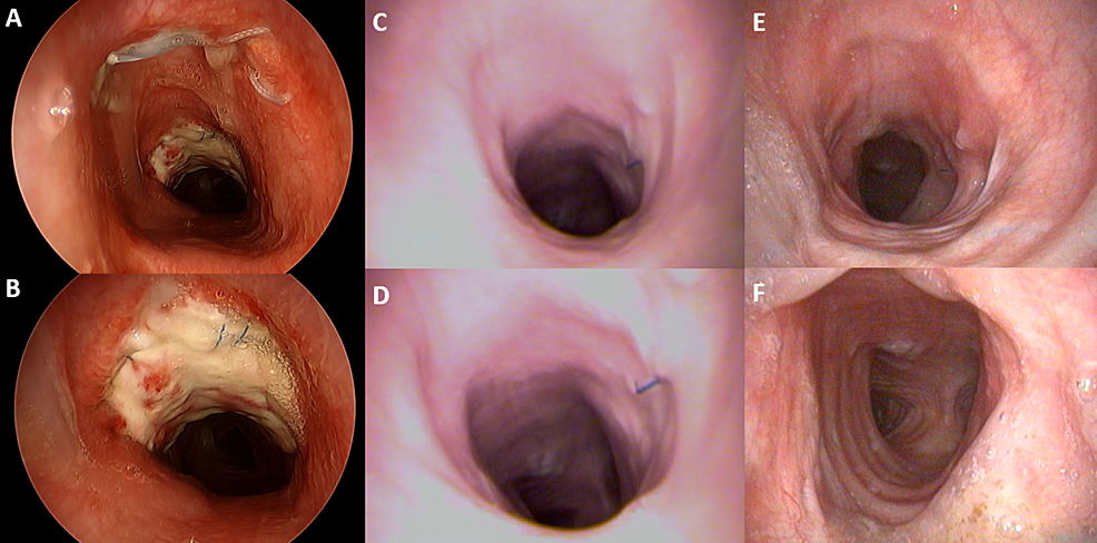 Serial-bronchoscopy-findings-after-tracheal-reconstruction