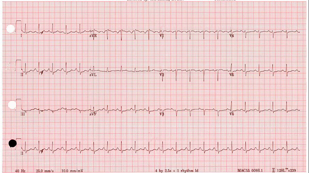 Electrocardiogram-showing-sinus-tachycardia-