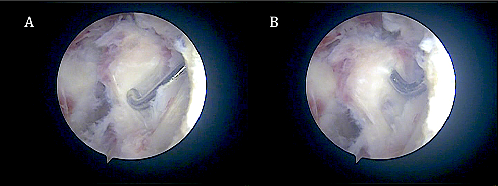 Arthroscopic-picture-of-the-infrapatellar-piece-of-heterotopic-bone-during-(A)-and-after-(B)-mobilization-before-excision