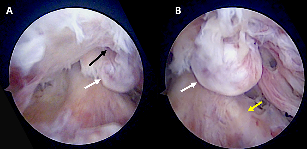 Arthroscopic-images-of-the-inverted-cyclops-lesion-in-relation-to-the-femoral-condyles-(A)-and-in-relation-to-the-anterior-cruciate-ligament-(B)