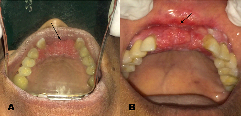 Lesion-after-completion-of-second-neoadjuvant-chemotherapy-cycle---(A)-Occlusal-view-(B)-Frontal-view