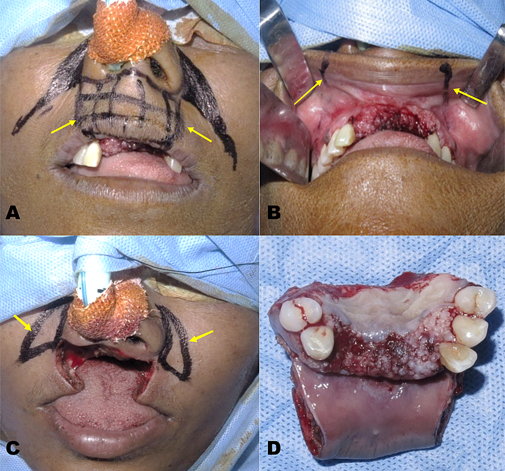 Resection-of-the-lesion---(A)-Extra-oral-incision-marking-(B)-Intra-oral-incision-marking-(C)-Wide-local-excision-(D)-Excised-specimen